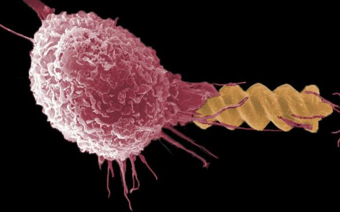 """Science子刊:微型颗粒如何""""钻""""进和影响免疫系统?"""